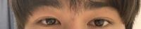 目が左右非対称すぎて困っています どうにか左右対称に近づく方法はありませんか? 自分の外カメラで撮られた時がとても嫌です 男なのでメイクなどはしないです