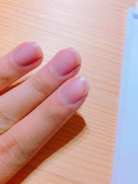 爪の先の白い部分を減らしたいのですが、どのようにすれば良いでしょうか? 特に人差し指の部分が酷く、よく糸などを引っ掛けたりゴミが溜まりやすいので治せるなら治したいです。(画像の通りです)  乾燥と爪へ...