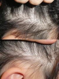 サイドの髪なんですけど、薄いですか? 刈り上げたら目立ちますか?