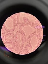 マウスの組織像の観察をしました。  全体的に楕円で、楕円の横にピッタリくっつくように三日月型の細胞たちの集まりがありました。 三日月の細胞たちと楕円の細胞たちは若干違っていて、  三日月のほうには前...