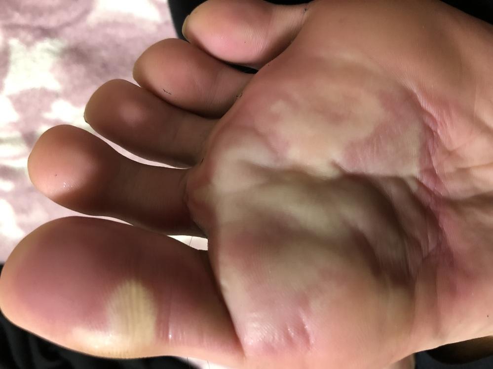 1月前から徐々に広がってきて痛みますこれって水虫ですか? 汚くてすいません。
