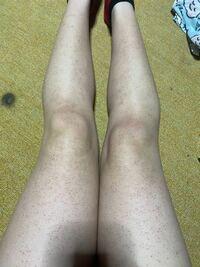 3-4年前何も知識もない中学生の頃にDAISOのカミソリで剃った時にカミソリ負けしました。 もともと肌が弱く、毛孔性苔癬持ちですが明らかにこの足は昔はなかったのでカミソリ負けですよね…。 もう数年も経ちますがこの足は元に戻りますか…? 一応ケアのキュアを使って1週間経つのですがまだ変化もなく、広範囲に塗るためコストもかかり困っています。(1本1500円くらいが1週間持ちません) どうしたら治...