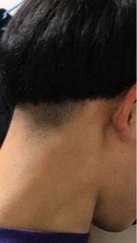 これ髪やばすぎませんか?今日切ってもらったのですが、写真を見してこんな感じの刈り上げをしたいと言ったのですが、できたのがこれでした。。。直し方はありますか?もう外出たくないです。