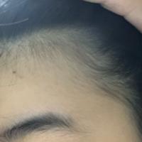 中学生です 生え際だけ髪の毛が細いんですけど禿げですかね