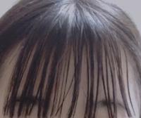 前髪のベタつきについて 以前はベタつきとは無縁で肌もオイリー肌じゃない普通肌でした。リンスーも前髪にしていたし特別なケアはしていなかったけど前髪は乾燥していました。なので休日出かける日はわざわざN.のクリームをつけて束感を出したりしていたのですが、最近ベタつきが酷いです。  写真は今撮った写真ですが昨日普通通り夜8時ごろお風呂に入りました。それから寝るまでピンで前髪がおでこに触れないよう...