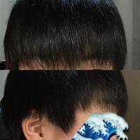 最近マッシュ(?)みたいな髪型の人が増えてるのですが、こんな感じの髪質と髪型でもマッシュにすることは可能でしょうか?