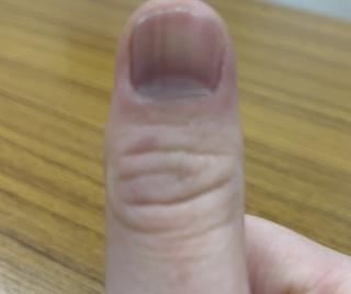 縦 爪 線 黒い に