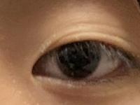 アイプチで瞼が伸びて写真のような瞼になってしまいました。これって治りますかね… 少しでも変わる方法があれば知りたいです。