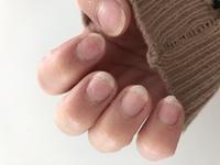 ジェルネイルオフについてです。 ジェルネイルをしていただき、殆ど全ての指にかなりの気泡が入ったので、お金をきちんと支払ってオフしていただきました。  親指以外の爪全てに亀裂が入っていて、写真のような状態です。  反対の指は爪が剥がれてしまい、血が出るしまつ...  ネイルサロンのオフでこんなに爪に亀裂ははいるものですか? 爪が薄くなりすぎてペラペラで、いつ剥がれるか怖いです。...