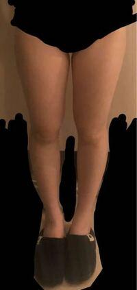 太もも太いですか?膝をくっつければ隙間はできません。