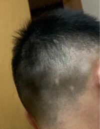 高校生男子です。 坊主にしてからこのように2箇所点々と毛が生えてない部分が目立つようになりました、 若ハゲ的なやつですかね…誰か教えてください