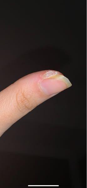 大学1年生です。。。 写真の見ての通り、爪の横の皮膚?中学三年生からなってて治らないまま大学1年生になっちゃってました。 お母さんに治せと言われてもたかがこれだけで病院に行くのも躊躇っちゃって放...
