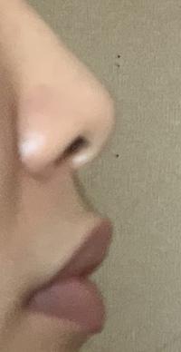 鼻を高くする方法ってやっぱ整形しかありませんか? あとこれって豚鼻ですよね、、、