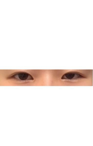左右で目の大きさが違いすぎるのがコンプレックスです。 左目がめちゃめちゃ目つき悪くて本当に嫌です。自撮りは盛れるのに他撮りだといくら意識してもだめです、、、左目だけちょっと三白眼気味なのかなと思...