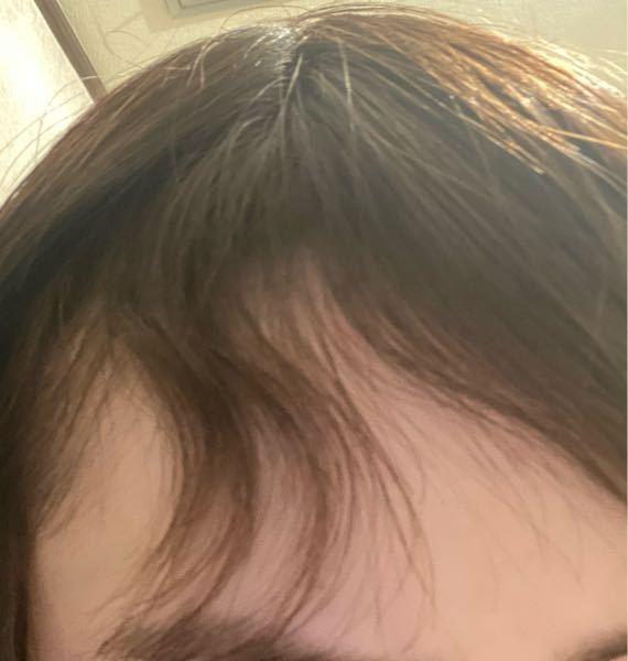 今日縮毛矯正をかけたのですが、前髪の右側だけうねってしまっています。これは失敗ですか?る
