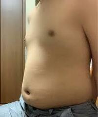 この子は肥満児ですか?