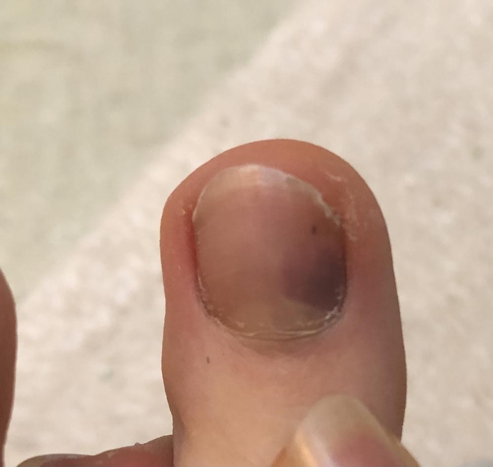 閲覧ありがとうございます。 バレエの練習をしていた際、トゥシューズで立っていると少しだけ親指の爪が痛く、見てみたら一部が赤黒く変色していました。 これは爪下血腫というものでしょうか? 以前先生に...