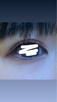 この目って蒙古襞ありますか?