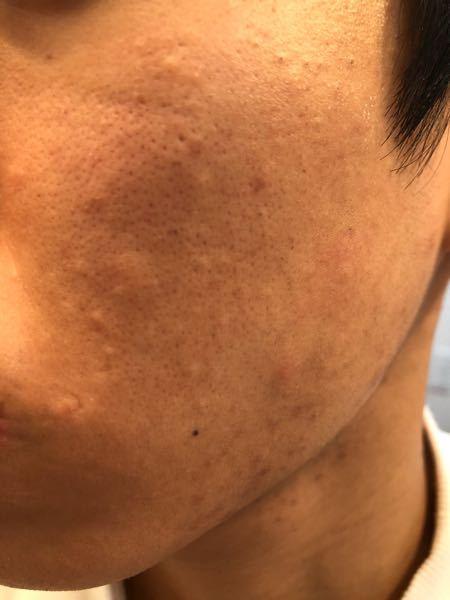 この頑固な肌荒れはCLIOのキルカバーってカバーできますか?また、キルカバーの中でもこの肌に合いそうなものを教えて欲しいです。男子なので綺麗にカバーしつつも化粧してる感はあまりだしたくありません。よろしく お願いします