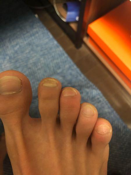 中3で長距離してます。最近ポイント練習が多くて足の指が痛いんですけど、普段の時から気を付けることや、練習の時に気おつける事はありますか?教えてください。痛いのは中指です、多分腫れてますよね?