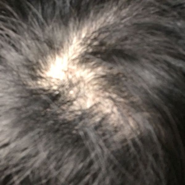 このつむじって禿げてますか? 禿げてたら対策ありますか? 中学2年です