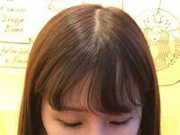 前髪 生え癖 写真を見ていただくと分かると思うのですが、写真の右側は根本からストンと落ちているのに対し、左側は根本からうねってしまい、言うことを聞いてくれません。 ストレートにしようとしても同じで、左側だけ真っ直ぐに落ちてくれず悩んでいます。 癖の反対に引っ張りながら乾かすなど工夫はしているのですが、やはり生え癖なのでどうしようもないですかね(*_*) ちなみに、前髪縮毛矯正をしたことがあり...