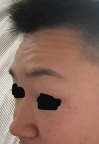 鼻低いんですけど高くする方法ってやっぱ整形ですか?