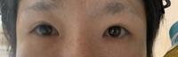 眼瞼下垂の手術をすると左右差が現れる事が多いのでしょうか?;;; 私は頑固な一重まぶただったのでジョウクリニックで埋没を希望してカウンセリングに行ったらジョウクリニックでは「あなたは酷い眼瞼下垂とまぶたが非常に重たい目元をしているので埋没をしても直ぐに取れるので埋没は出来ません。眼瞼下垂+脱脂の手術の見積もりを出しておきます」と言われ埋没を断られたのですがいきなり切開をする勇気が無く他院の城...