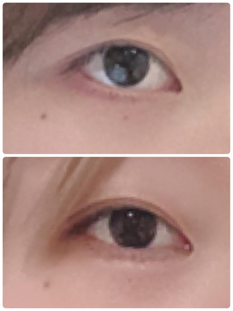 伸びた瞼を戻す方法。 蒙古襞をなくしたくマッサージをしていたのですが、目頭の瞼が伸びてしまった...