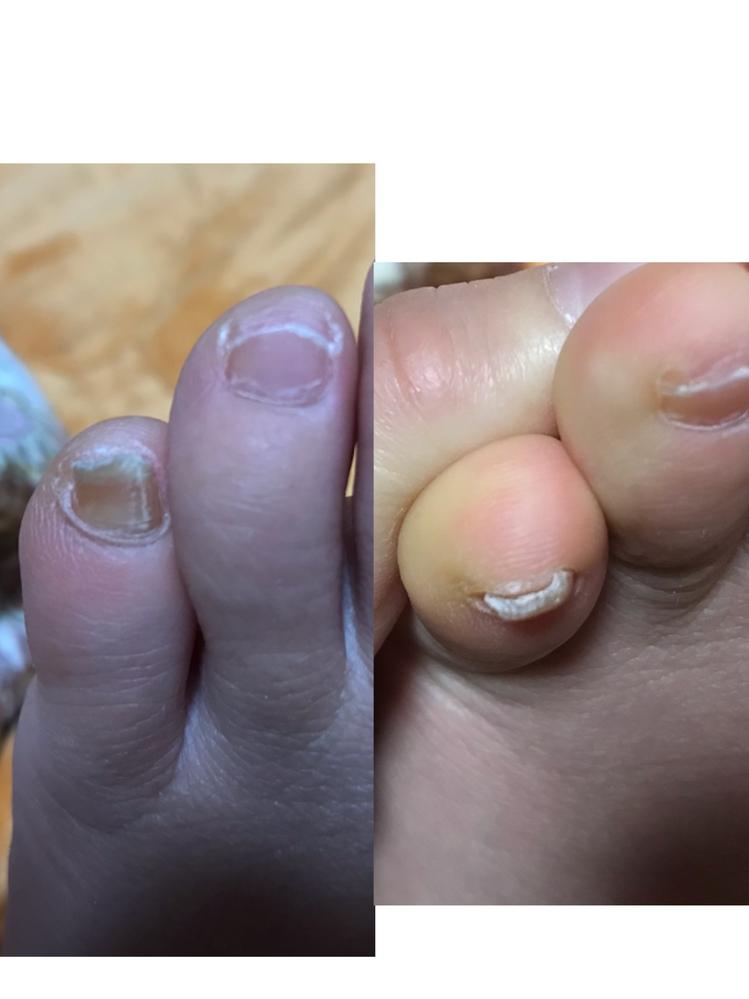 【閲覧注意】 この小指は爪水虫でしょうか? 病院へ行くべきなのかわかりません。痛みはありません。
