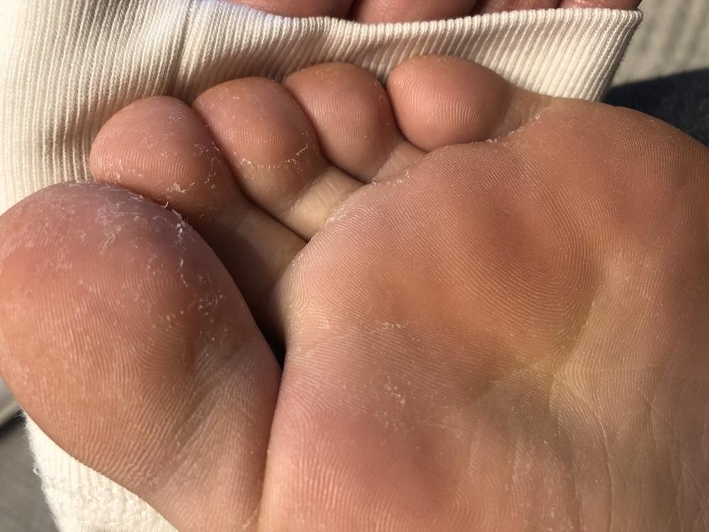 水虫について 2週間ほど前から足の指が画像のような状態になっています 水泳をやっていた頃に水虫にかかったことがあるのですが、当時は指の間だけ皮がむけたり痒くなったりしていました 今回は痒みは全く...