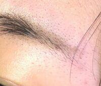 質問です。この眉毛の剃ったあとの残った毛のポツポツが気になります。どうすれば改善させるでしょうか?