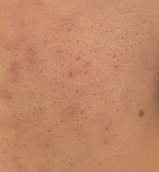 画像閲覧注意 このような頬の毛穴を治すには何をすればいいですか? ちなみに私は高校1年生で洗顔はロゼットの青い物、導入化粧水・乳液・化粧水は無印良品の物を使っています。
