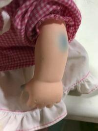 赤ちゃん人形に付いたこの青色のアザみたいなのを落とすことは可能でしょうか? 除光液を使っても落ちませんでした。 材質はゴムっぽいです。