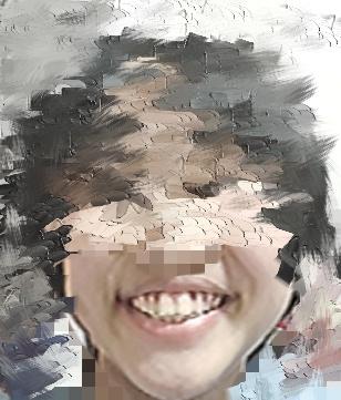 顔が左右非対称です、笑うとものすごく目立ちます非対称治す方法ありますか?