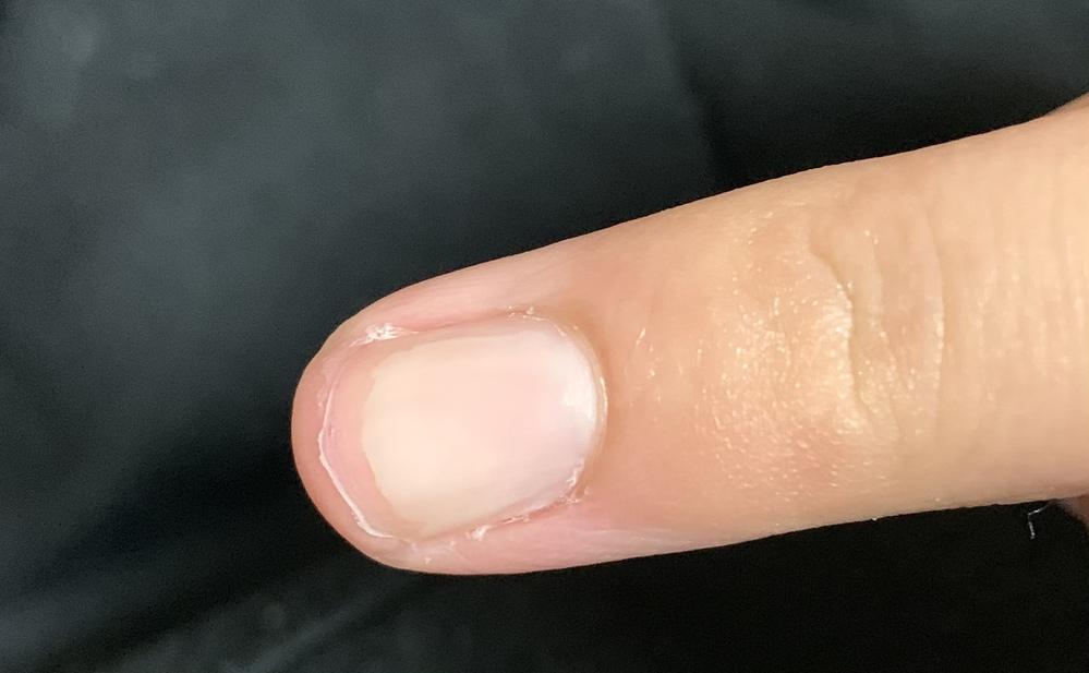 先日、爪が割れてしまいそのままめくってしまったため、画像のような感じになってしまいました。 高校卒業後にネイルに行こうと思っているのですが、現在の爪で長さ出し、ジェルネイルは可能でしょうか? ご...