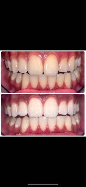 【歯写真注意】ホワイトニング、これどう思いますか? 学生です。 今日某ホワイトニングサロンに行ってきました。契約していたので3回目です。 写真は1回目の際のBefore Afterです。 正直1...