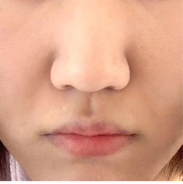 写真あり。小鼻縮小をしたくてたまらないのですが、小鼻縮小をして後悔してる人は多い と聞いたことがあるのですが、本当なのでしょうか? 目の埋没などと違って取り返しつかないとは思いますが、 自分の顔...