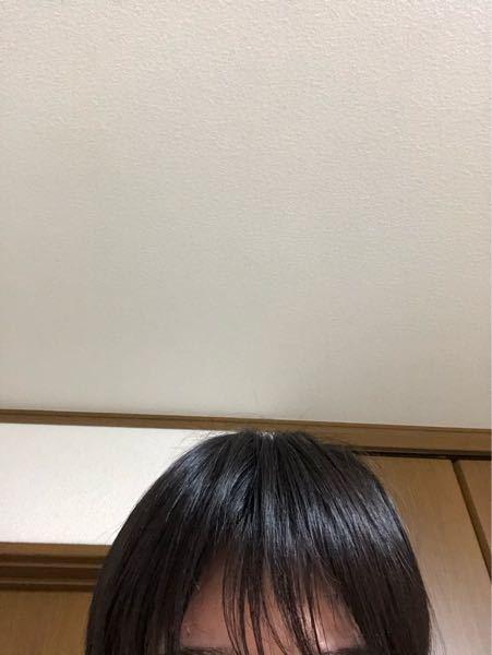 どうしても写真のように前髪が割れるのですが、ハゲでしょうか? 洗髪やドライヤーに関しては調べて気を付けています。