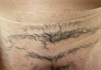 お見苦しいものですみません。医療脱毛に通っているのですが、1ヶ月前ほどに2回目を終了させました。けれど前回も今回もこのようにライン状に毛が残っていて、打ち漏れなのかわからずとても不安です。これは打漏れで しょうか、、。