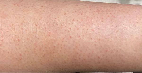【閲覧注意】 ちょっと気持ち悪い写真が出てきます、皮膚のブツブツ沢山です。 足に変なブツブツが出来てるとある日気が付き、病院に行く時間もないので、そこからしばらく放置していたら見た目的にまぁま...