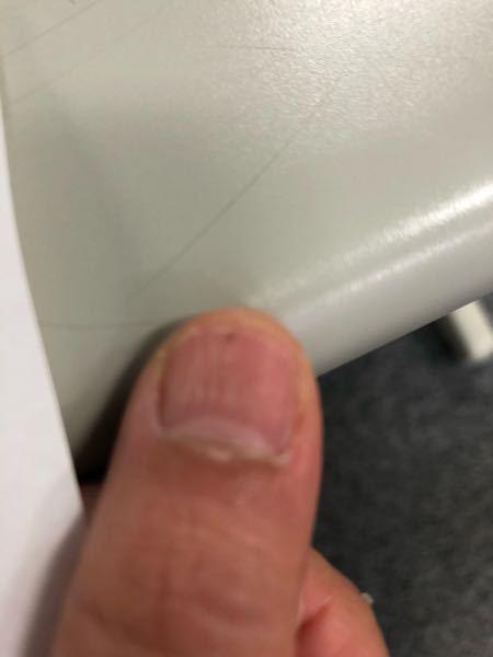 今朝気がついたら爪の先に黒い点がありました。心配なものですか?