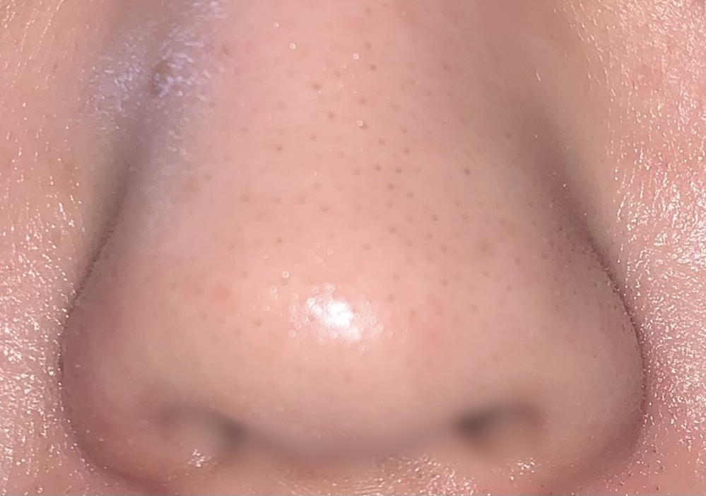 この鼻はどうやったら治りますか?鼻の横も乾燥しやすくてパウダーすると粉浮きしてしまいます。写真は保湿後なのでテカってます。