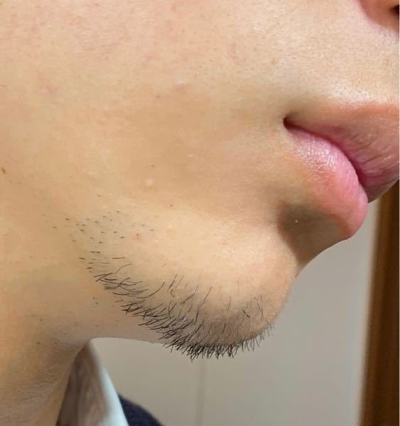 17歳男子です 髭を伸ばし始めて訳2週間でこれだけ伸びました、伸び早い方ですか?