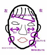 顔の歪みについて。 私は本当にずっと顔の歪みについて悩んでおり、整形も考えていたのですが整形する勇気がない為断念しました。  私の噛みグセを教えて頂きたいです。 色々調べた結果、噛みグセや寝方が原因なのかなと考えています。  ↓画像にも書かせていただいたのですが…↓ ・右にパーツが下がっている ・左の頬が広く右の頬が狭い ・左のエラが張っている ・右の頬骨の下あたりが凹み、たるみがある ・右...