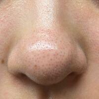 鼻の黒ずみの無くし方を教えてください(´;ω;`) 写真はお風呂上がりで洗顔した後です。 洗顔した後は写真みたいに白く?と言うよりかは地肌に似た色、本当に穴が空いたような感じになります。 でも次お風呂に入る時...