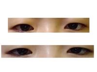眼瞼下垂?  眼瞼下垂の保険適用手術を考えている者です。 今まで目を開ける際におでこを上げるのが嫌で、また授業中にも腫れぼったい一重なので寝ていると勘違いされ何回も呼び出し注意されることに嫌気がさし二重の整形を考えていましたが二重になりたくないので眉下のリフトアップ?を調べていたら自分が眼瞼下垂であるかもしれないと思いました。  画像上の目がおでこと眉毛をあげたと時の目で下の目がなにも眉もお...