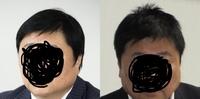 左右どちらの方がスッキリした髪型だと思いますか?