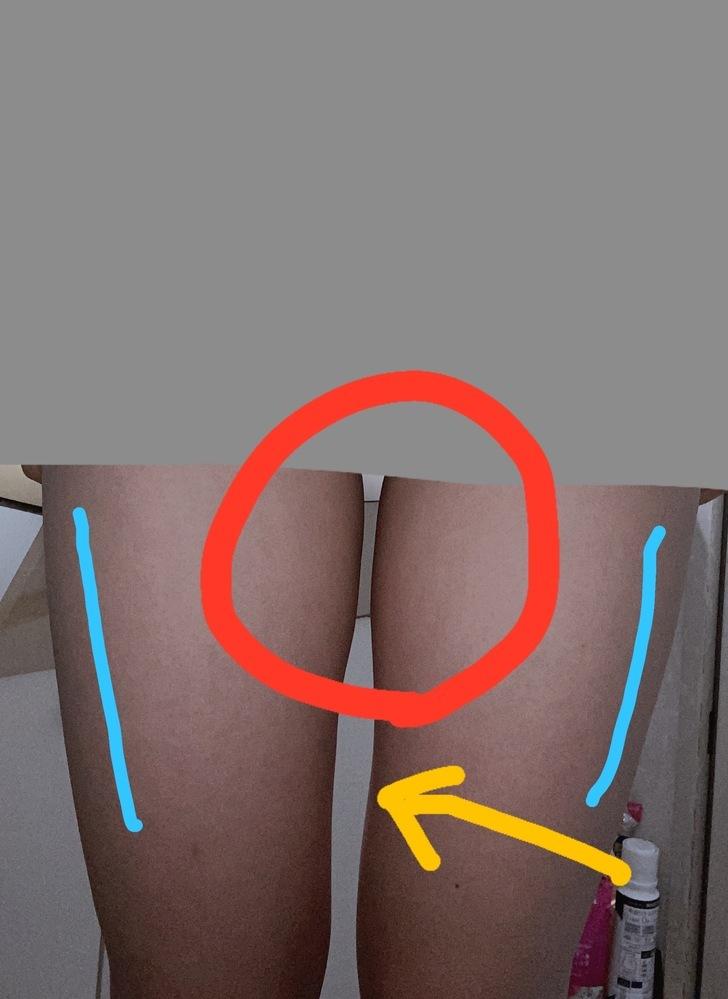 脚やせ 太もも 太ももの下半分は細いのですが上半分がぽっこり出てて辛いです。体育着などを履けば細く見えるのですが、実際はそんなことなく、足をくっつければ足の隙間は完全になくなります。 内もも痩せなどの運動は一通りしたのですか、いまいち効果が見られませんでした そして骨盤が歪んでいて大転子が広がってあるので、ズボンにTシャツをINすることができません。 どうすればいいですか? 何かいい方法が...