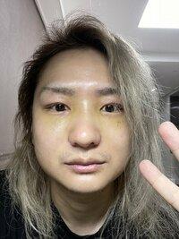 整形のダウンタイムについての質問ですが、この目〜鼻の顔周りの内出血跡(黄色くなっている部分)は何の施術が原因でしょうか?? ↓施術内容とのこと(ダウンタイム7日目) ・目頭切開 ・目尻切開 ・埋没 ・頬骨縮小 ・オトガイ形成 ・エラ削り ・Vライン ・3mプロテーゼ ・鼻骨幅寄せ ・鼻先整形 ・小鼻縮小